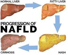 progression-of-nafld.jpg
