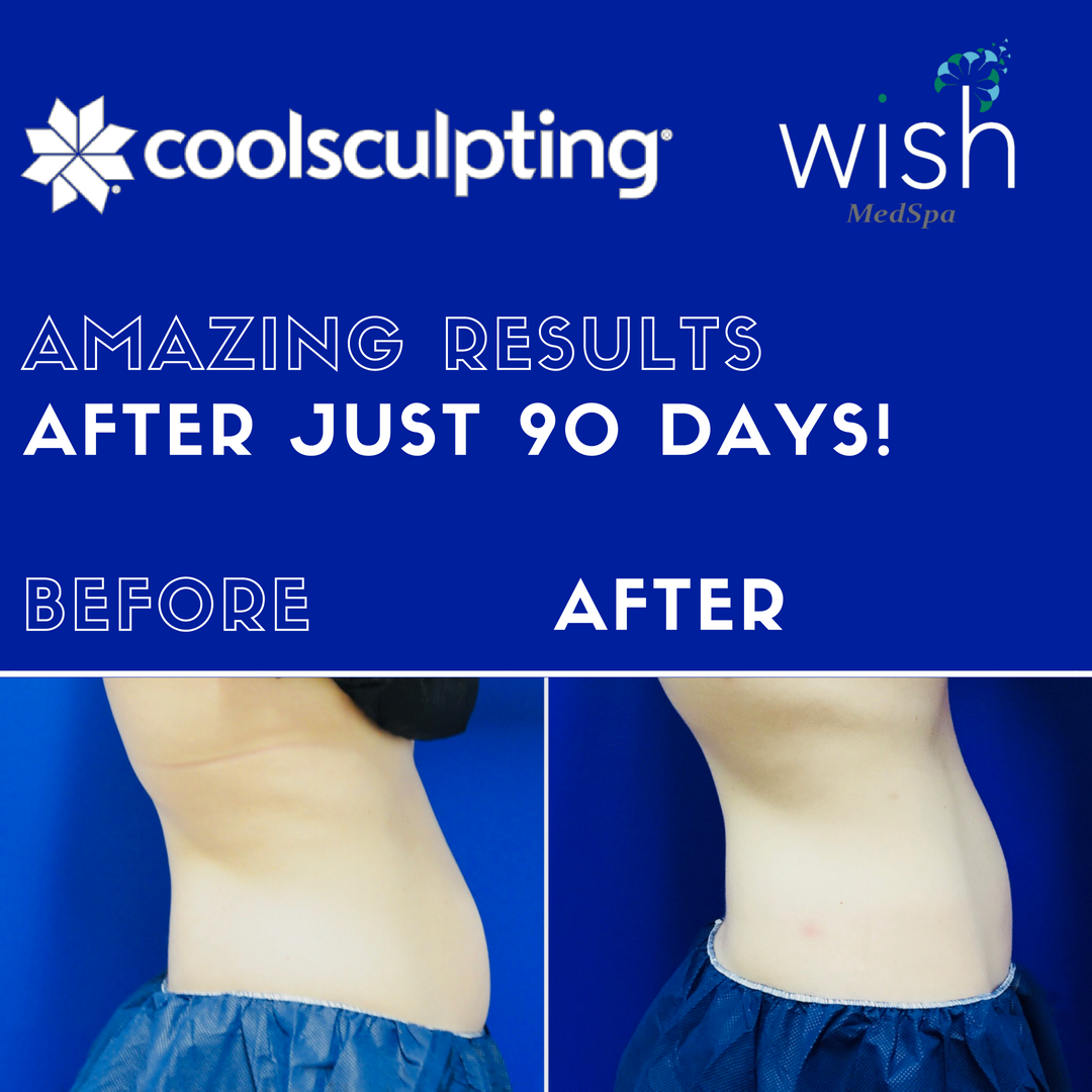 CoolSculpting® Before & After