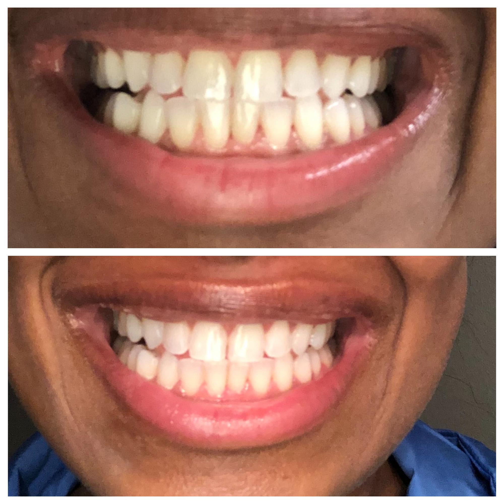 Kayra Before-After stacked.jpg