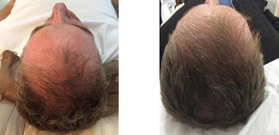 Results after 1 treatment.