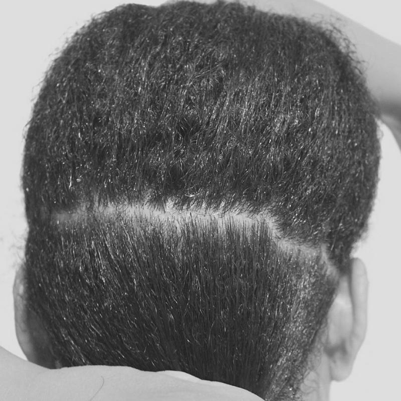 scalp health -