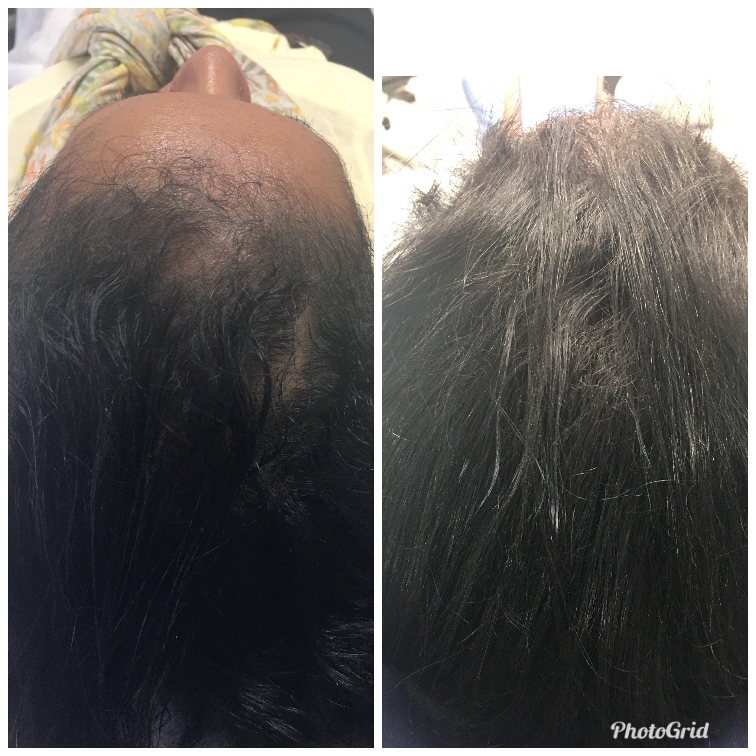 Traction Alopecia Treatment (15 Weeks)