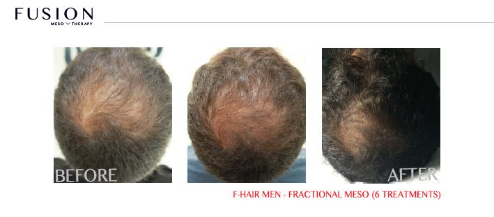 Fusion-BA-F-HAIR-MEN-FRACTIONAL-MESO-6-TREATMENTS.jpg