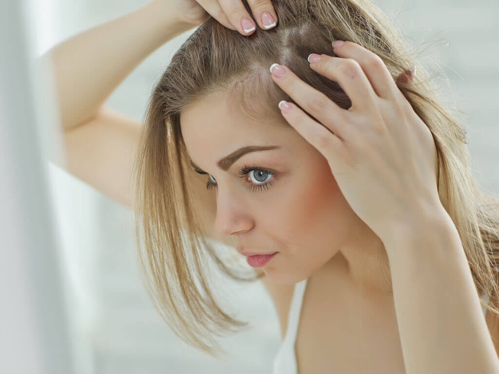 female pattern baldness -