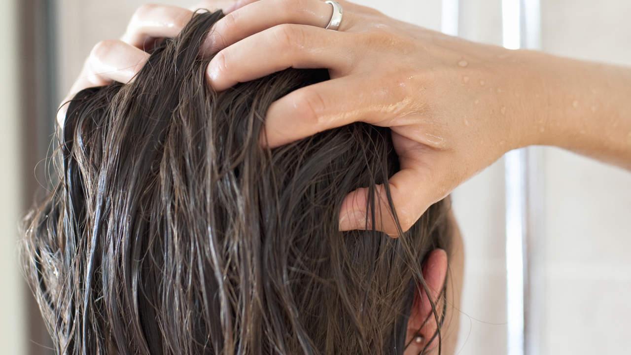 Alopecia -