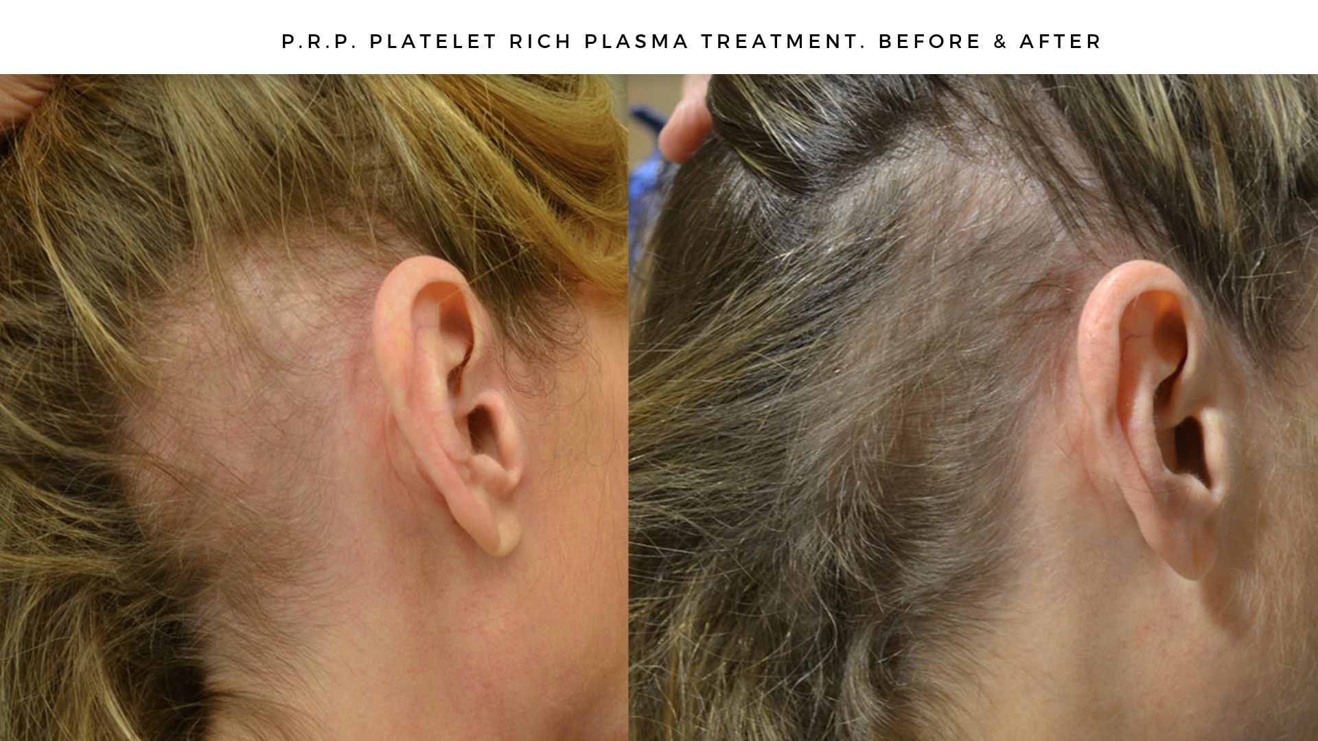 PRP Before & After