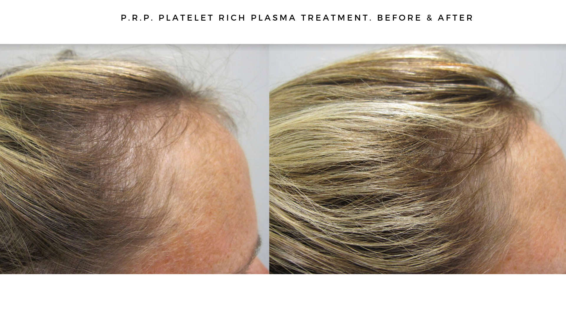 PRP and Microneedling Before & After (4.5 Months)