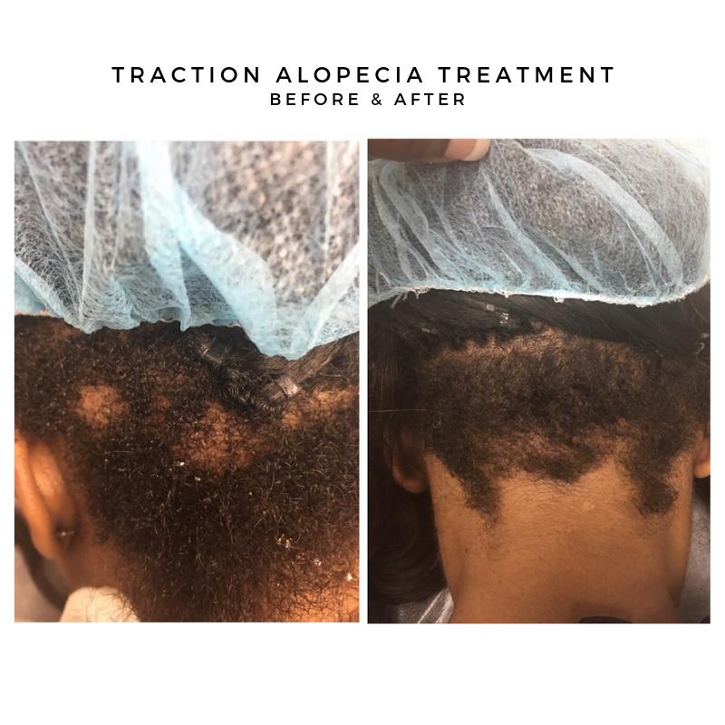 Traction Alopecia Treatment