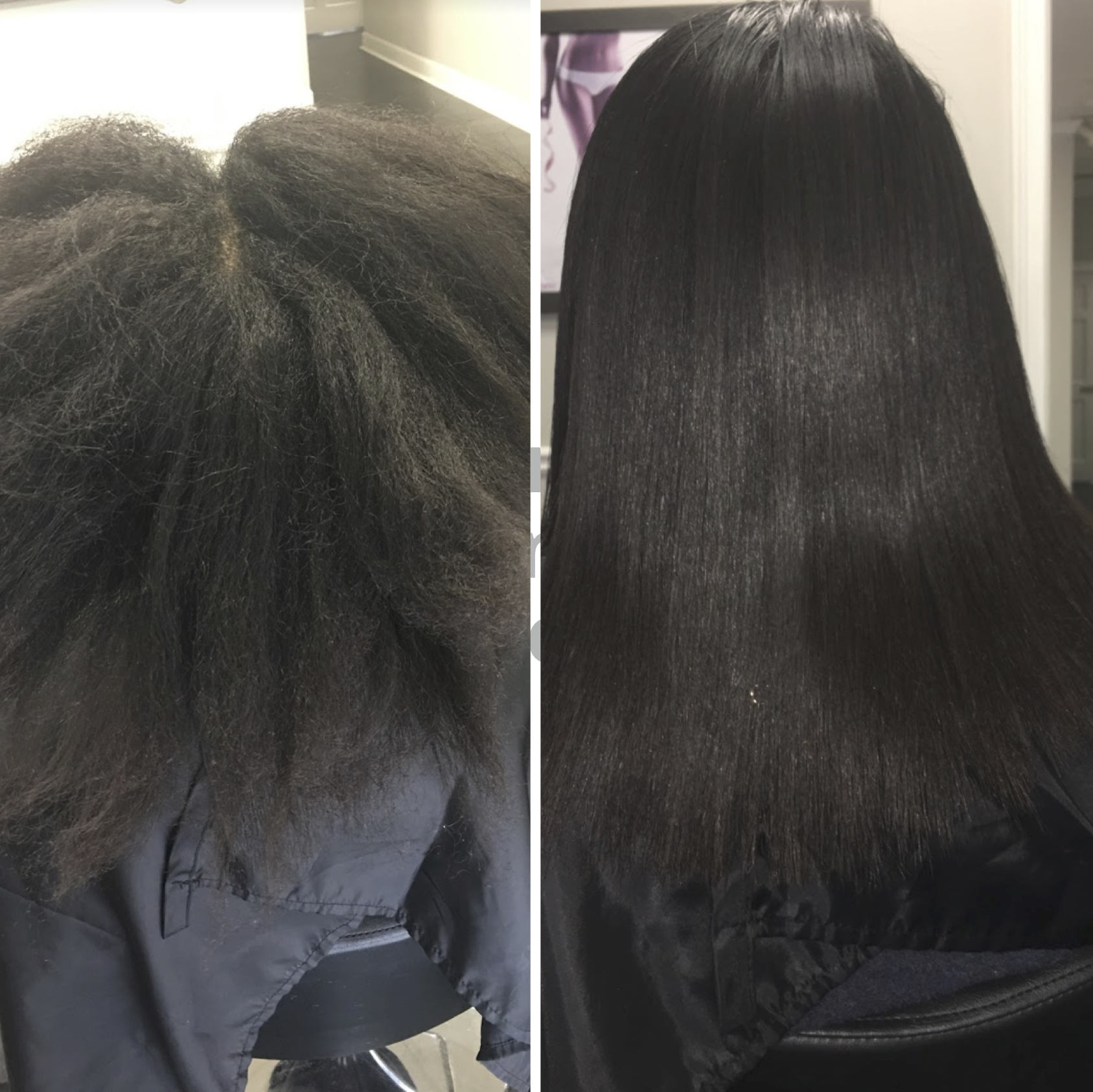 Natural Texture Smoothing Treatment