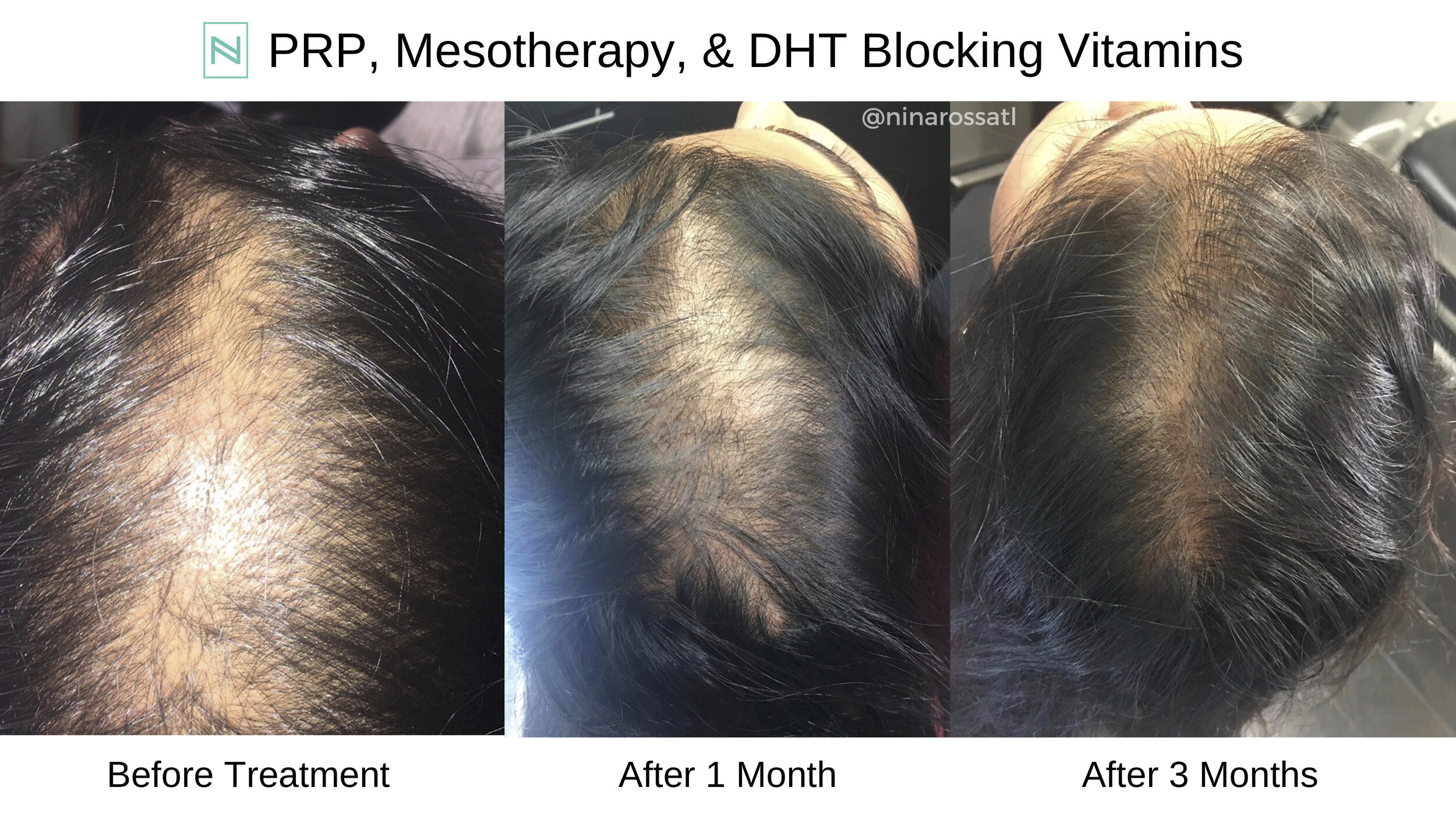 PRP, MESOTHERAPY, & DHT Blocking Vitamins.jpg