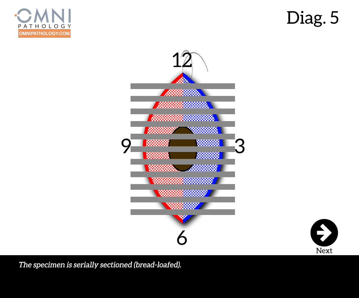 12-OclockEllipse-5(4inW)B.jpg