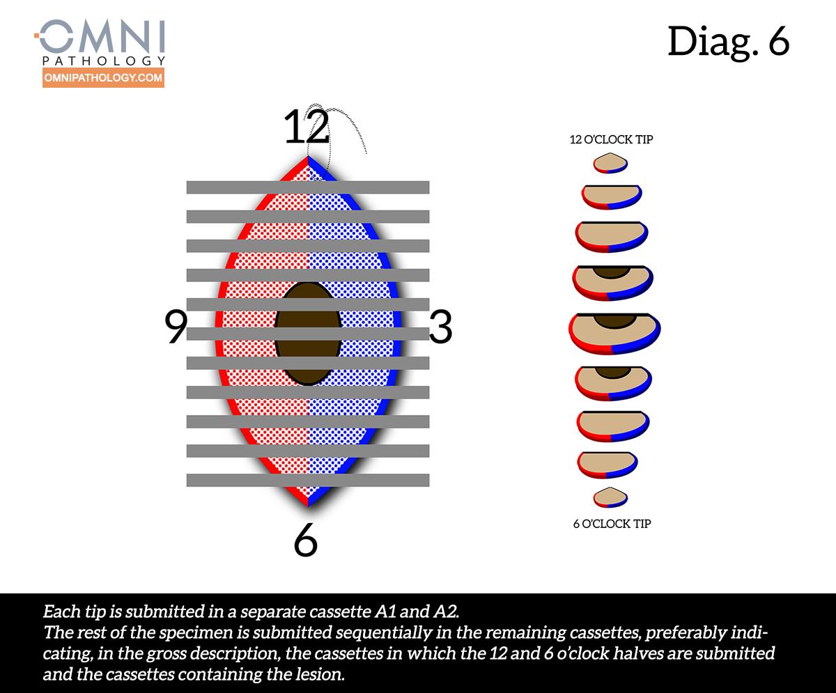 12-OclockEllipse-6(4inW)B.jpg