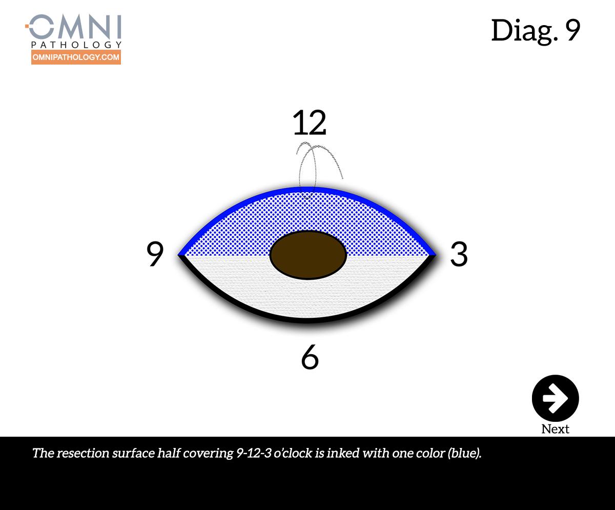 12-OclockEllipse-9(4inW)B.jpg