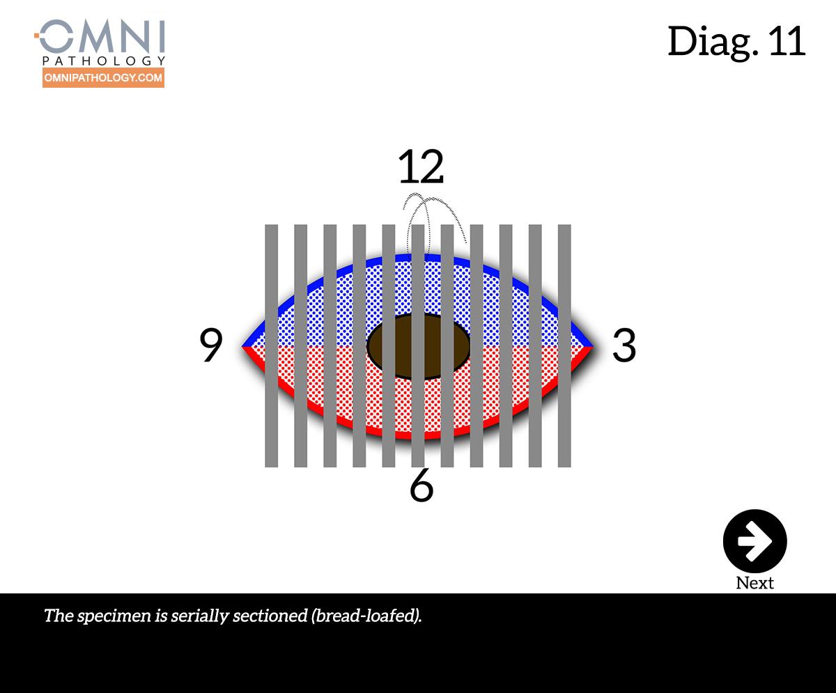 12-OclockEllipse-11(4inW)B.jpg