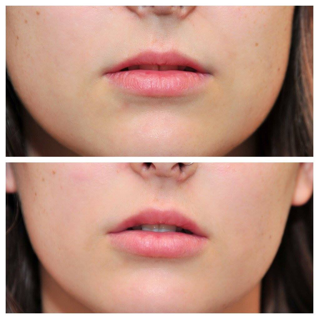 Juvéderm Lip Filler -