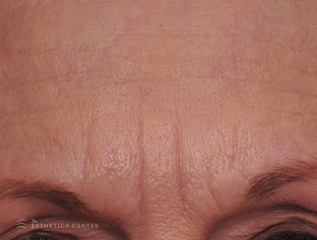 Botox 1 - before.jpg