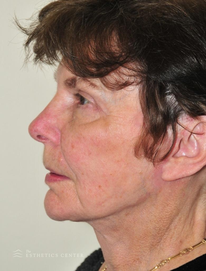 Facelife, neck life, eyelid lift - after.jpg