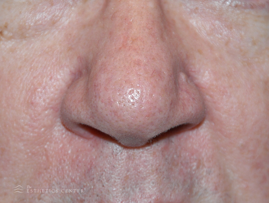 Facial Vessles 1 - after.jpg