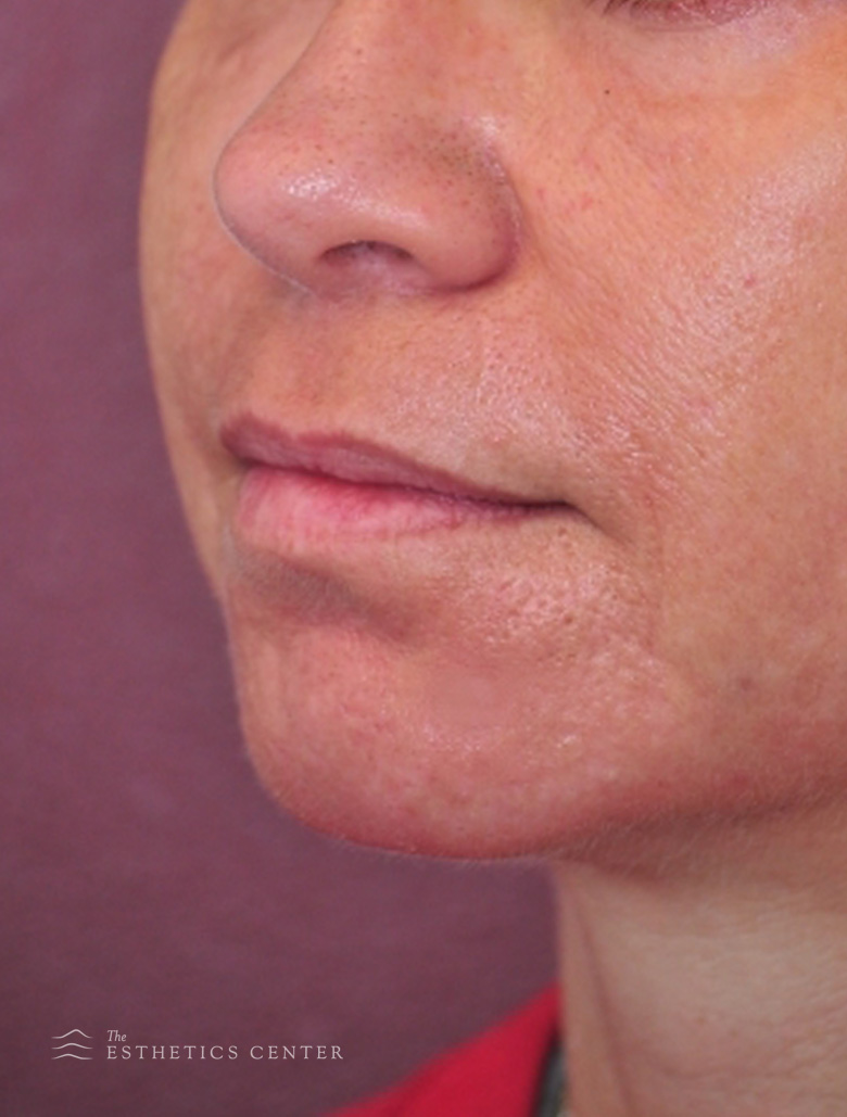 Chin Aug  - After.jpg