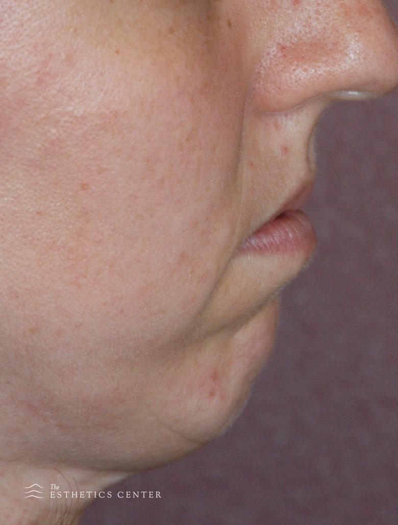 Chin Aug - before.jpg