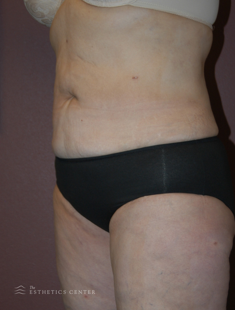 Lipo 5 - after.jpg