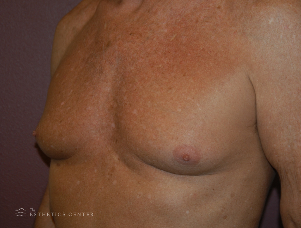 Male Chest - before.jpg