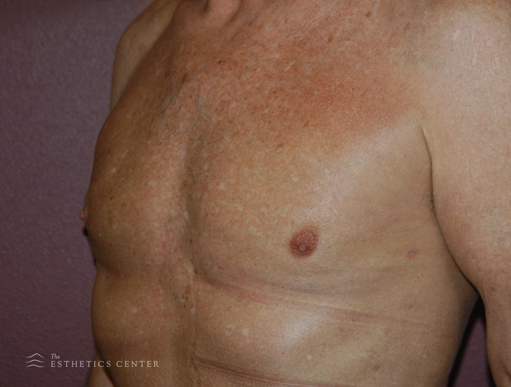 Male chest - after.jpg