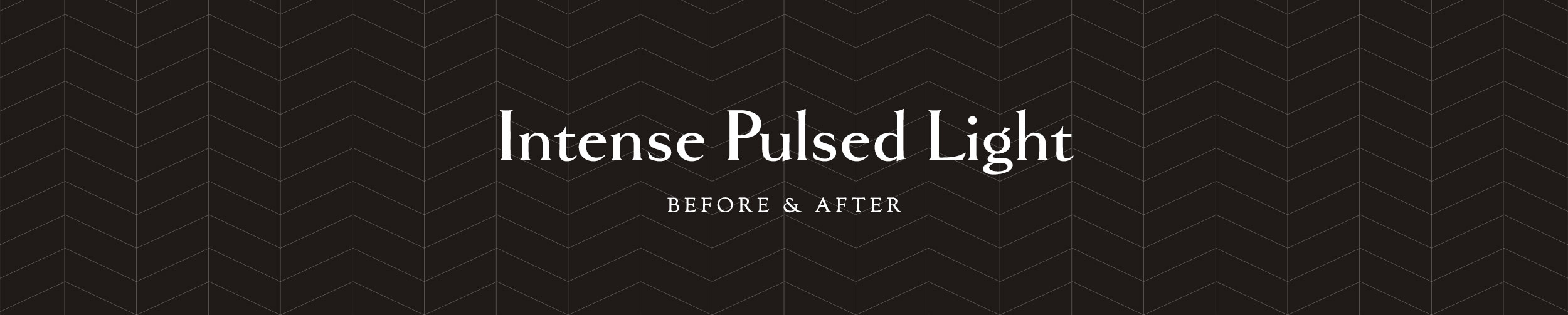 IntensedPulsedLight_Before&After.png
