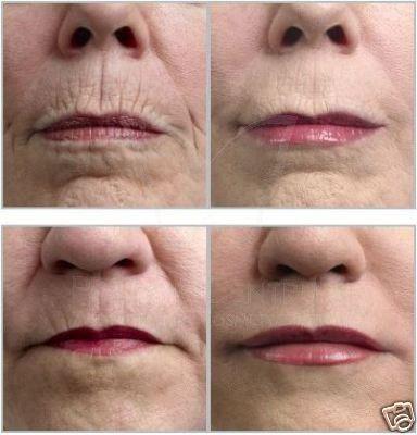 dermaroller-wrinkle-before-after.jpg