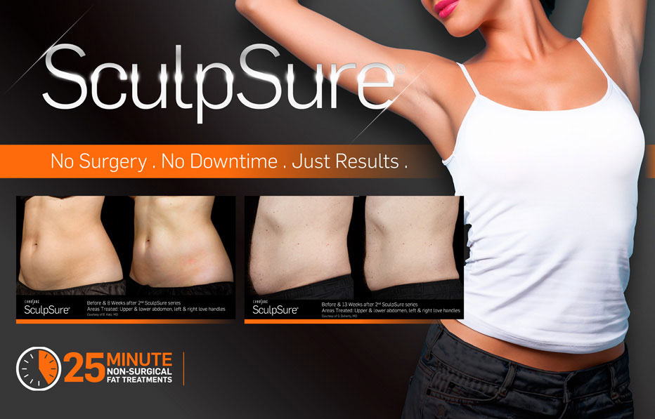 sculpsure.jpeg