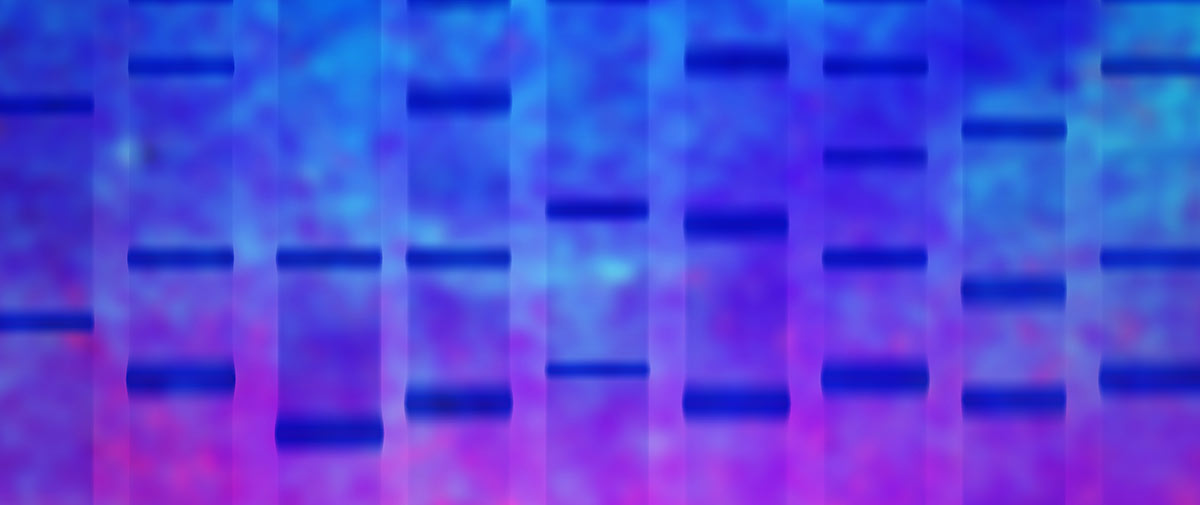 Mutations in the GBA1 gene are the most common genetic risk factor for parkinsonism. -