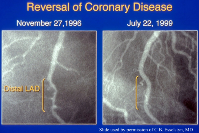 Coronary angiograms of the distal left anterior descending artery before (left) and after (right) 32 months of a plant-based diet without cholesterol-lowering medication, showing profound improvement.  Image from     Caldwell B. Esselstyn, Jr., MD, The Cleveland Clinic