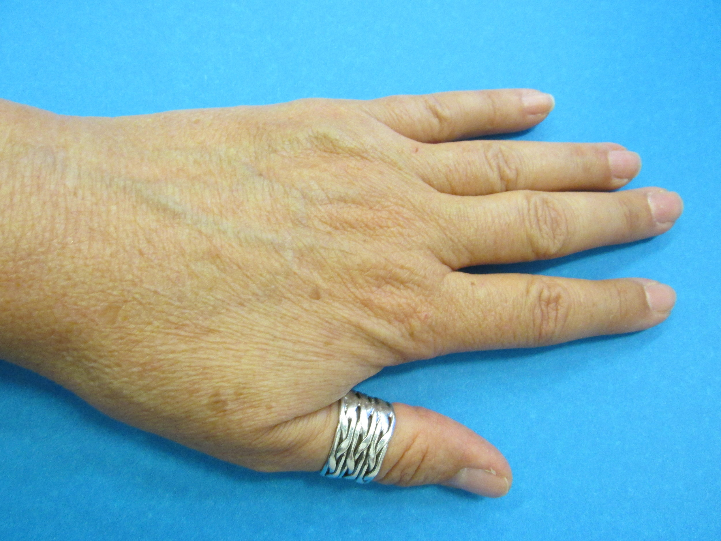 Carpal Tunnel Surgery - After one college degree in Computer Science and 16 years in the industry, followed by 19 years of listing on ebay every week, Marquis etc. will be closed for hand surgery starting today. Our expected return is August 25th but I will post the exact date to this website when I am recovered enough to return to work.