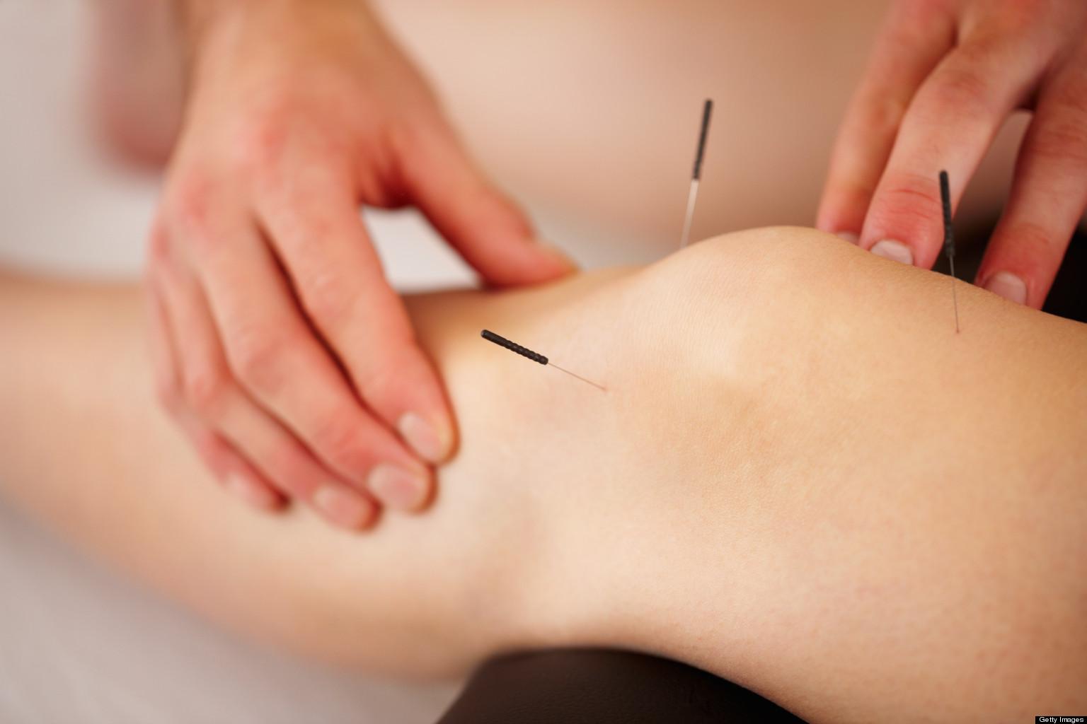 acupuncture 1.jpg