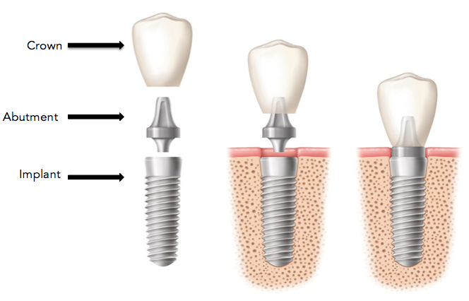 dental-implant-abutment-crown