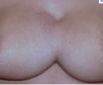 """Symmastia is usually a result of over-dissection of the tissues in the cleavage area. This over-dissection is sometimes done intentionally in hopes of creating or increasing cleavage - other times, its unintentional. Symmastia is commonly referred to as 'breadloafing', or 'kissing implants', or 'uniboob'. With this condition, the implants actually meet in the middle of the chest, giving the appearance of one breast, instead of two."""