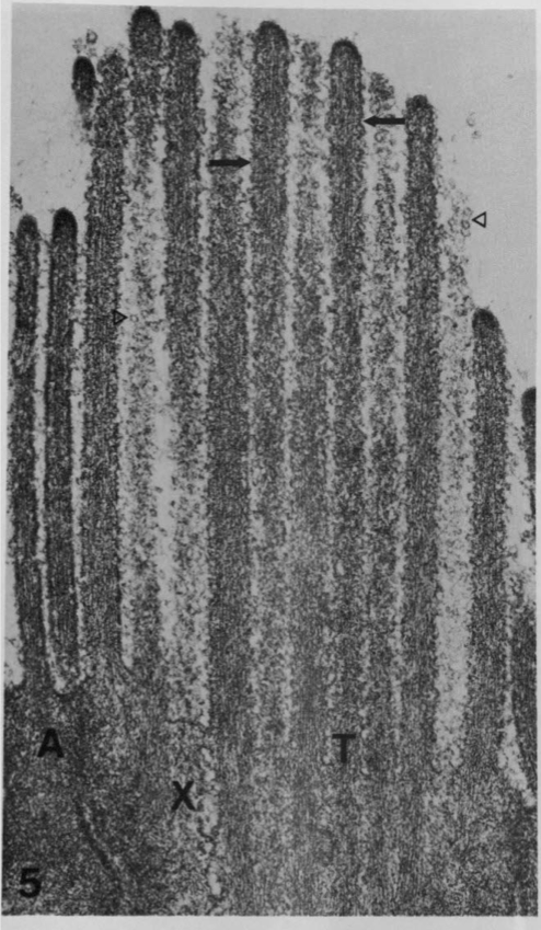 """Tufts"" of long apical microvilli give tuft cells their name."