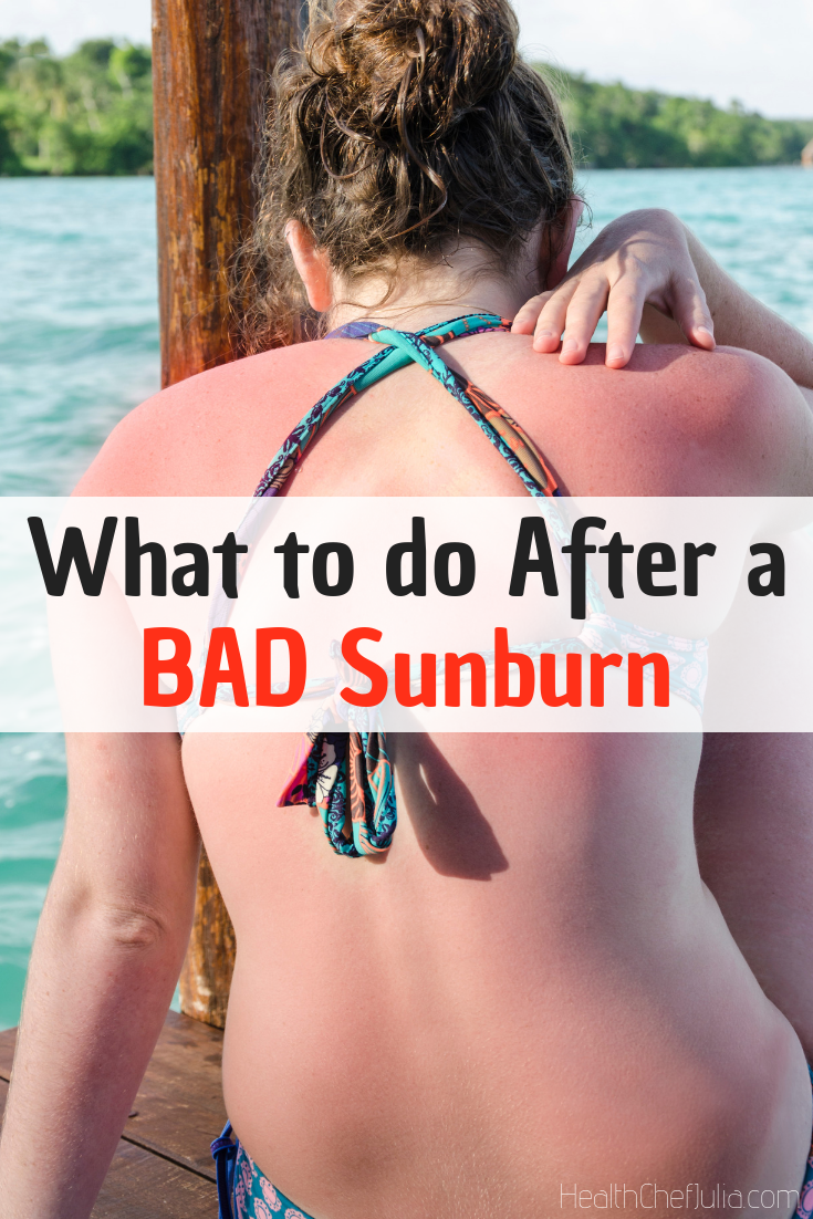 What to do After a BAD Sunburn