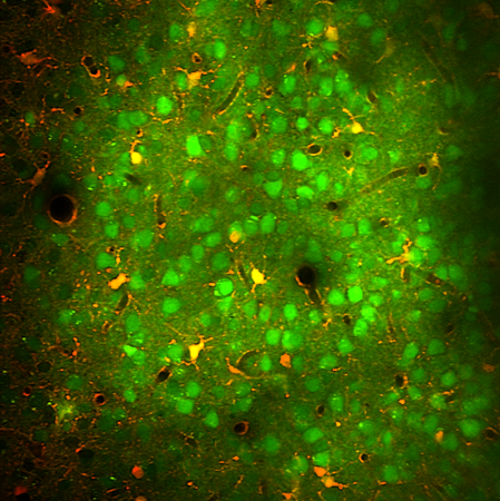 Synchronous hyperactivity and intercellular calcium waves in astrocytes in alzheimer mice - Kuchibhotla, K, et al., Science, 2009