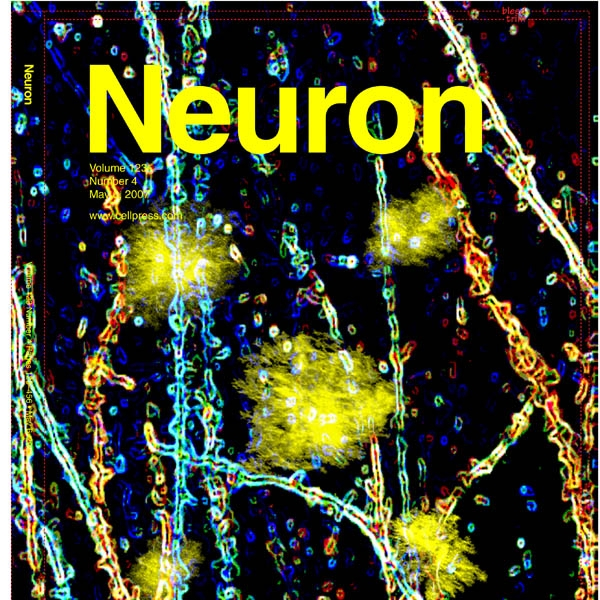 Aβ plaques lead to aberrant regulation of calcium homeostasis in vivo resulting in structural and functional disruption of neuronal networks - Kuchibhotla K. et al, Neuron, 2008