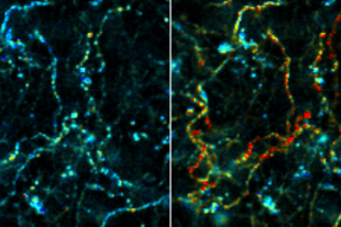 cholinerg_axons_png.png