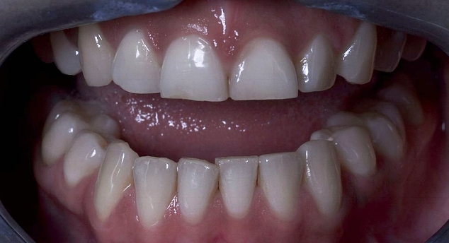 Image provided by Propdental