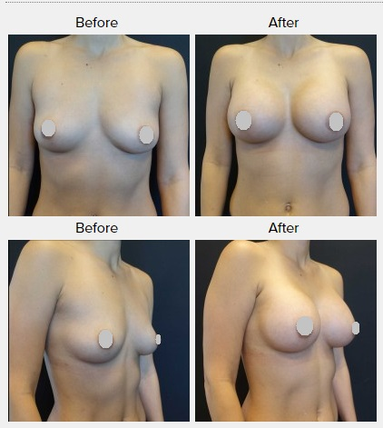 The patient had an endoscopic axillary breast augmentation with silicone breast implants. The axillary incision is not visible from a front view on the breasts.