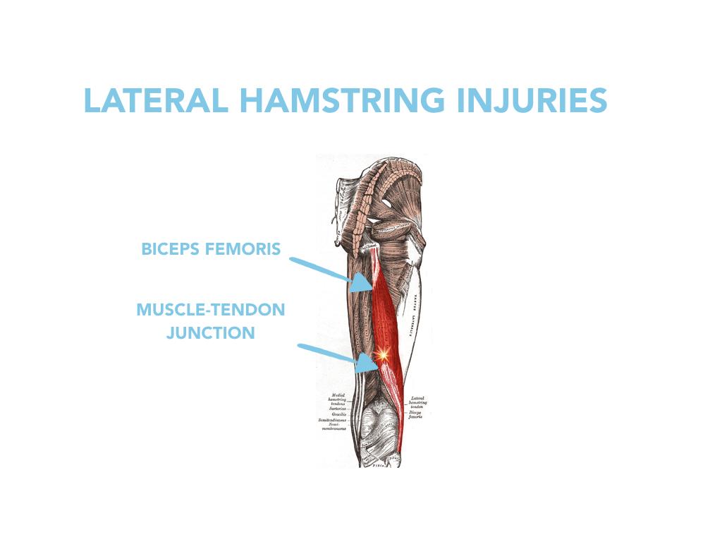 Lateral Hamstring Injuries.001.jpeg