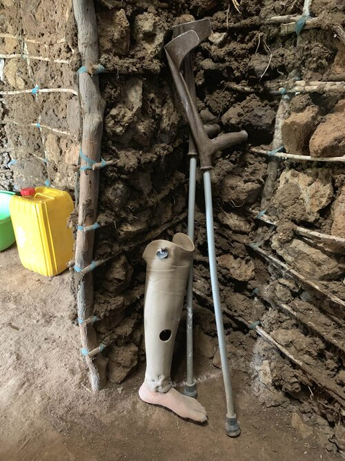The old prosthesis and crutches Arnold used for the last ten years