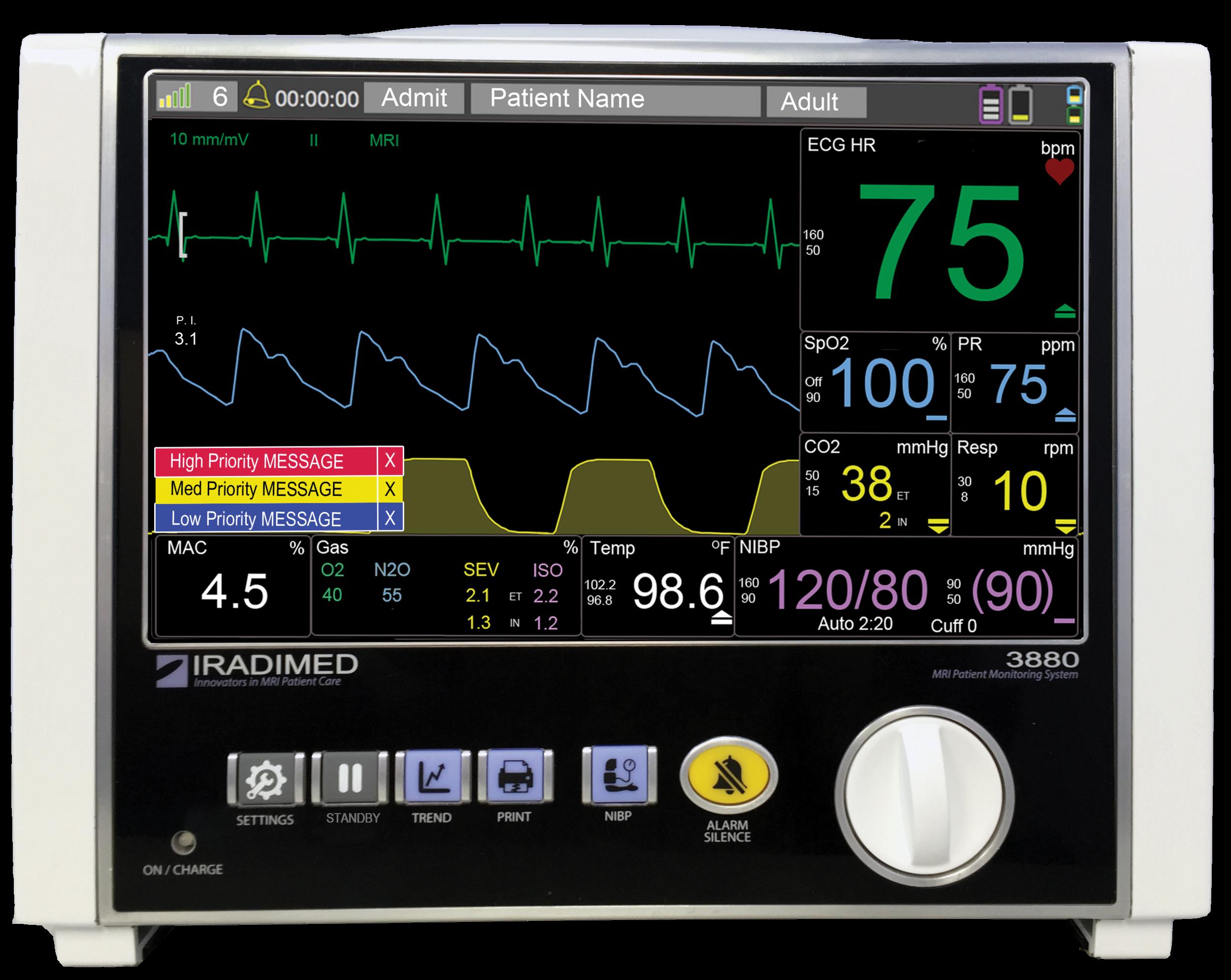 3880 MRI Patient Monitor — IRadimed