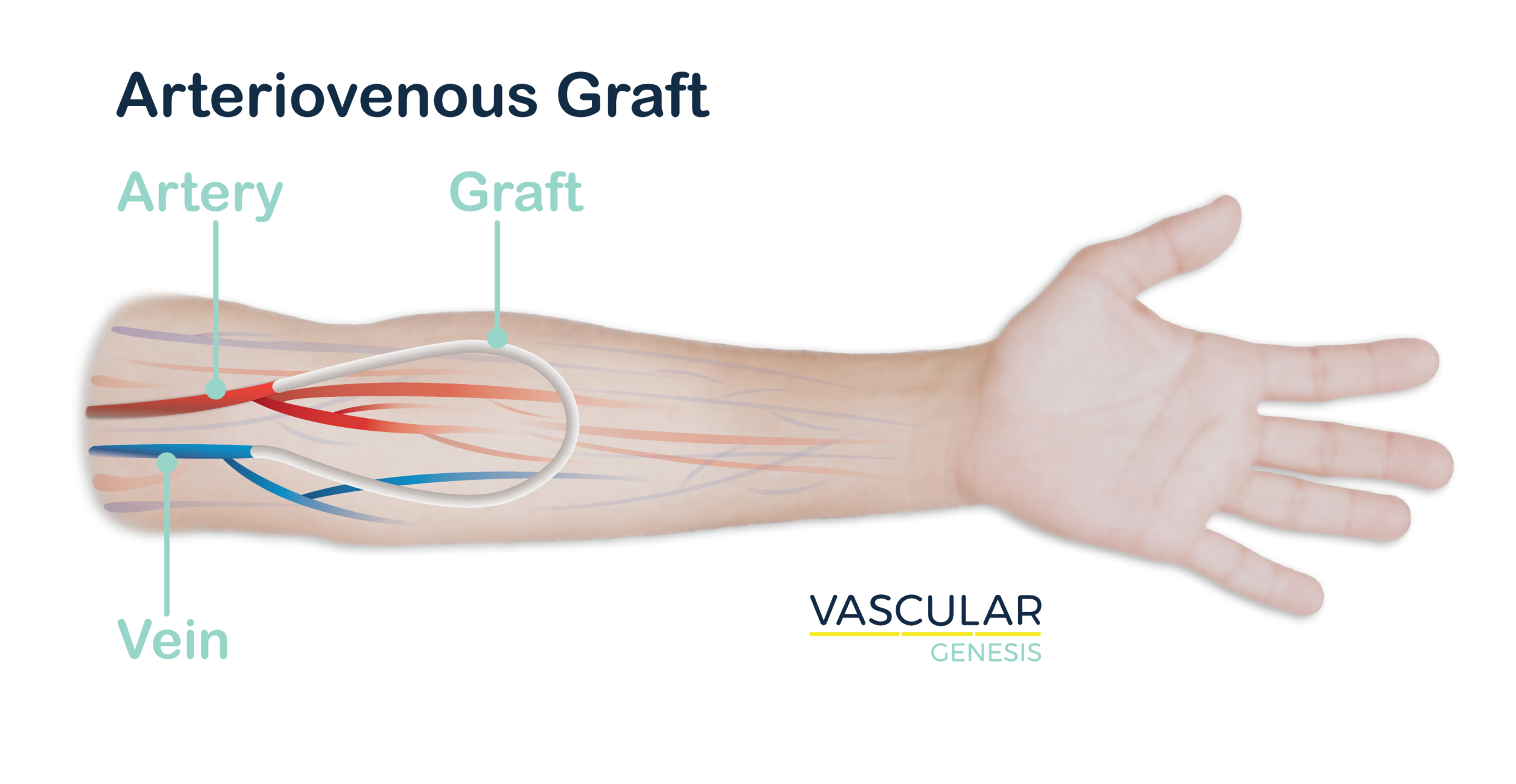 arm-graft-graphic-01.png