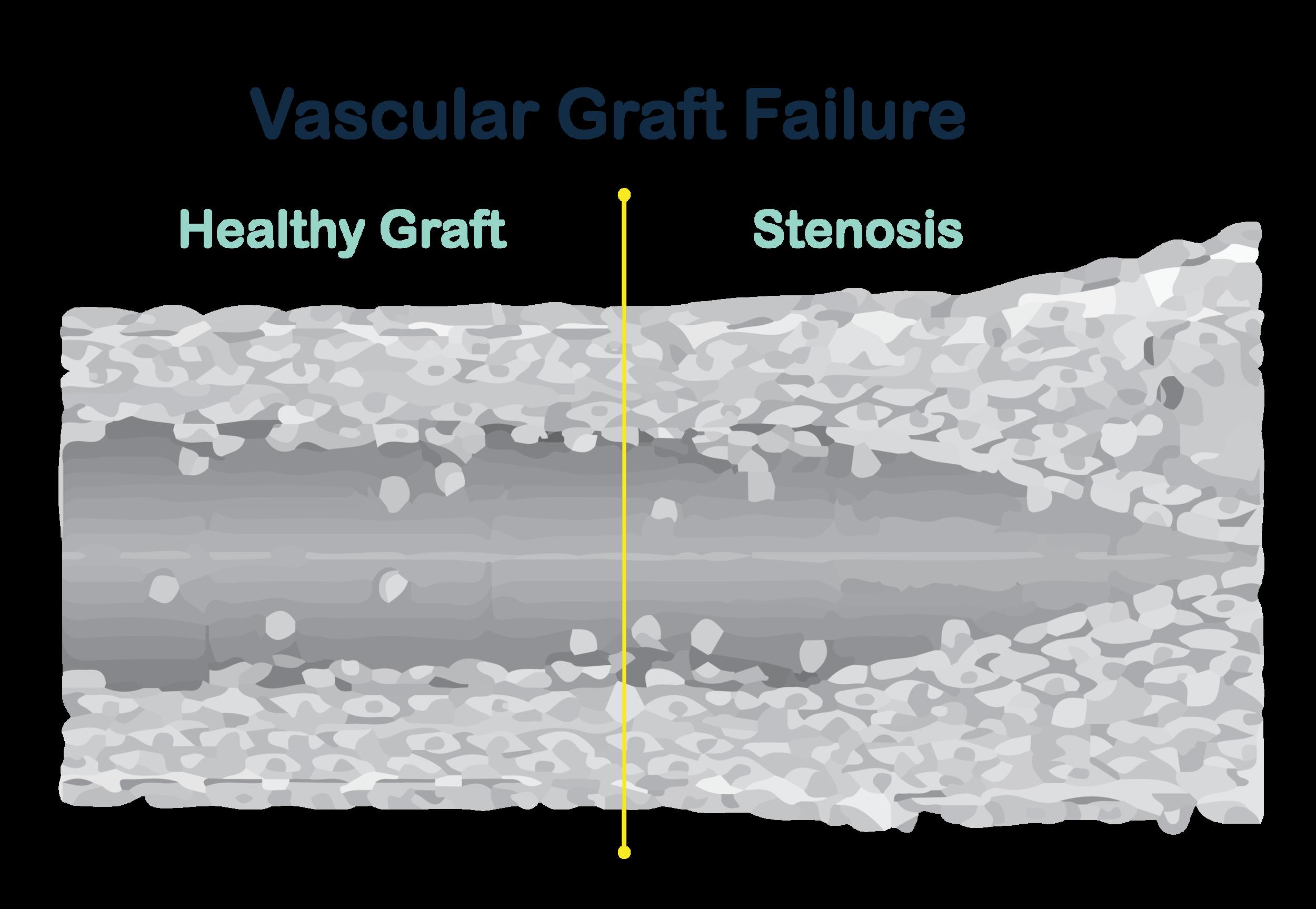 graft failure diagram v2-01.png