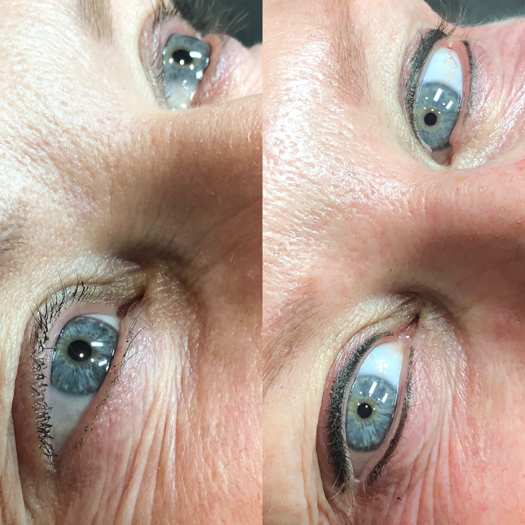 Upper and Lower Lash Enhancement