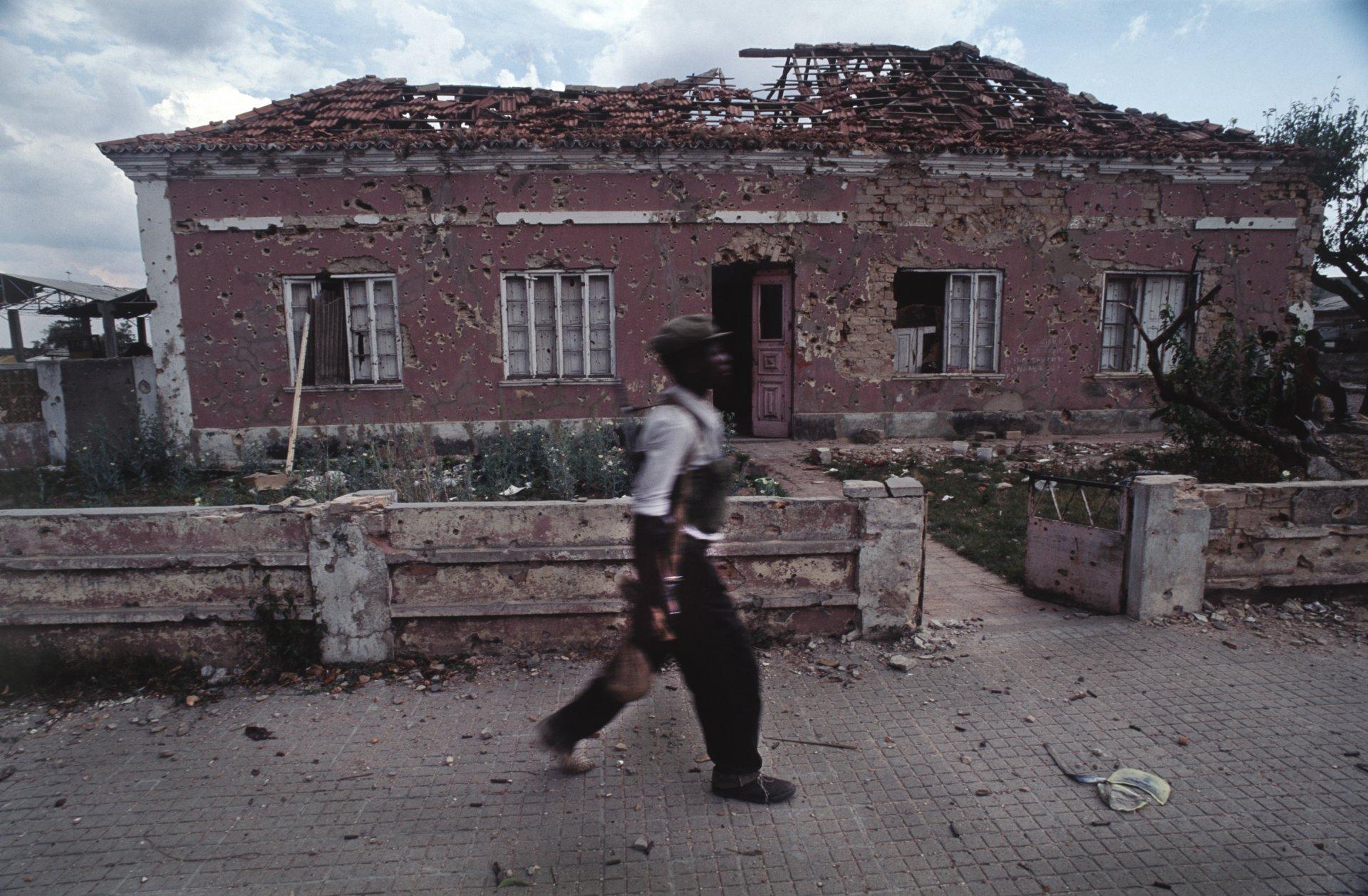 """""""War Acne""""Angola's destructive civil war. Quito, Angola, 1993"""